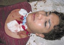 Jayaram, a meti who survived a murder attempt on the street in Kathmandu, 2004