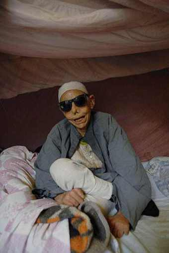 Sheikh Sayed, 88, blind and a Hansen's disease patient, a resident of Abu Zaabal for 63 years: © Claudia Wiens, 2009