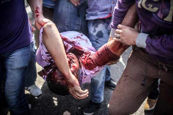 August 14: Protester shot at Rabaa El-Adawiya. From Mosa'ab Elshamy at http://www.flickr.com/photos/mosaaberising/sets/72157635071774090/