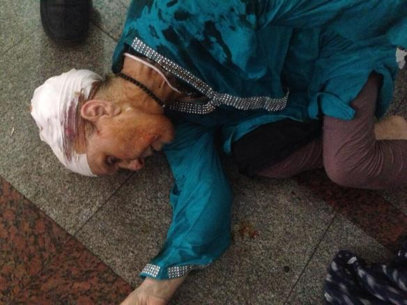 August 16: Old woman wounded by birdshot at Rabaa El-Adawiya collapses on hospital floor. From @SharifKaddous