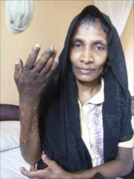 South Asian domestic worker in Kuwait shows injuries inflicted by her employer